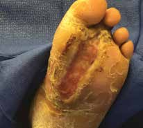 Pre-debridement of foot ulcer.